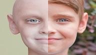 انواع مرض السرطان