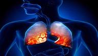 امراض الجهاز التنفسي المزمنة