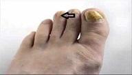 امراض القدم السكري