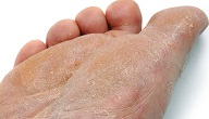 امراض القدم الجلدية