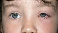 امراض العيون عند الاطفال
