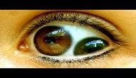 امراض العيون النادرة