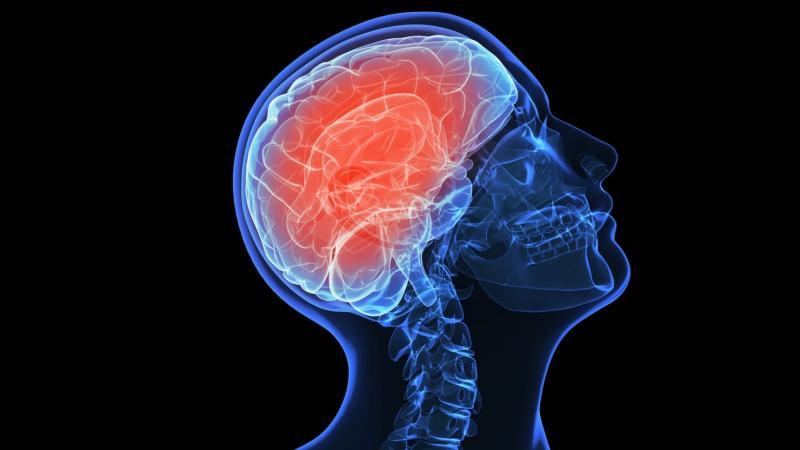 الاعصاب الدماغية