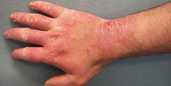 امراض الجلد الفيروسية