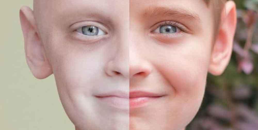 اعراض سرطان الدم عند الاطفال بالصور