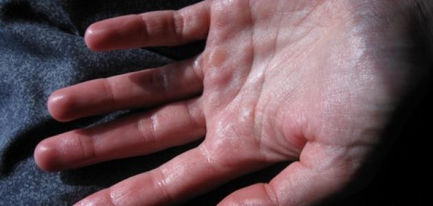 كيفية التخلص من التعرق الزائد في اليدين