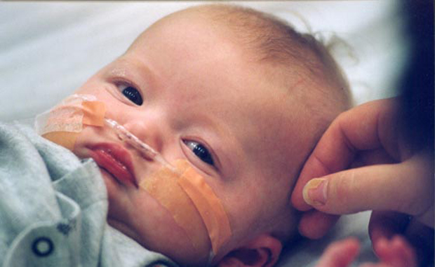 اعراض سرطان الدم المبكرة عند الاطفال