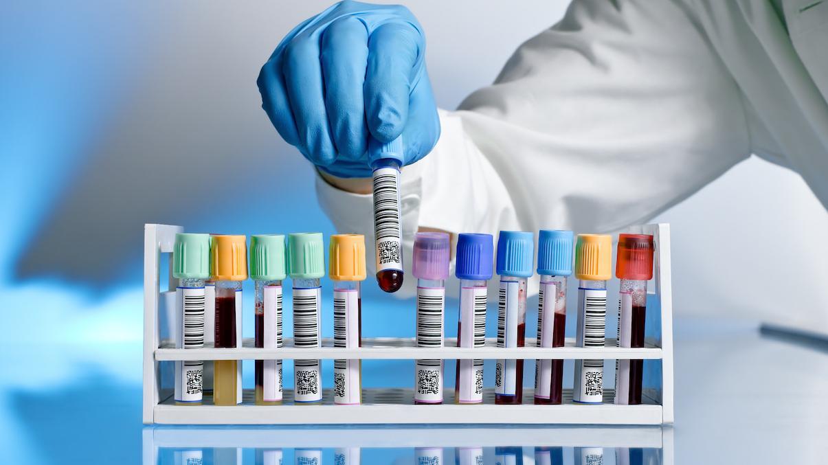 انواع التحاليل الطبية الشاملة