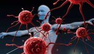تعريف مرض السرطان