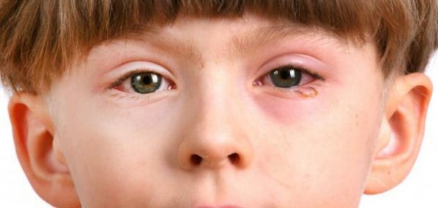امراض العيون عند الاطفال بالصور