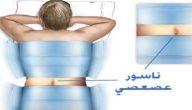 علاج الناسور العصعصي
