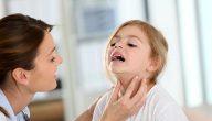 الغدد اللمفاوية في الرقبة عند الاطفال