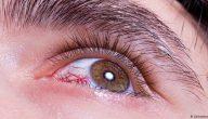 اخر علاج للعيون الوراثيه