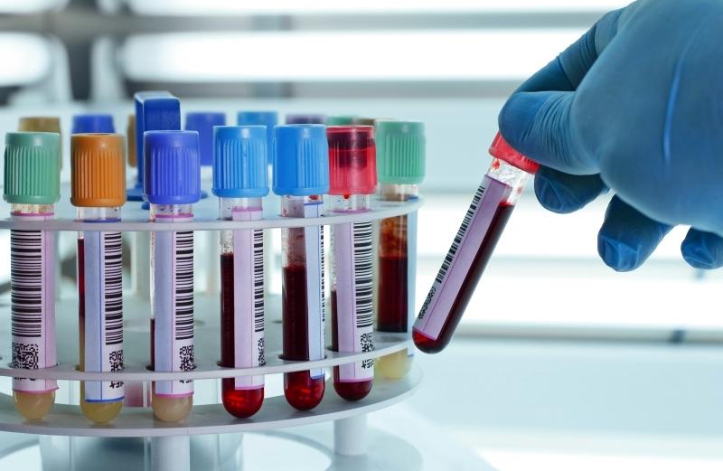 مصطلحات طبية مختبرات