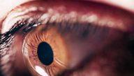 ضعف شبكية العين وعلاجه