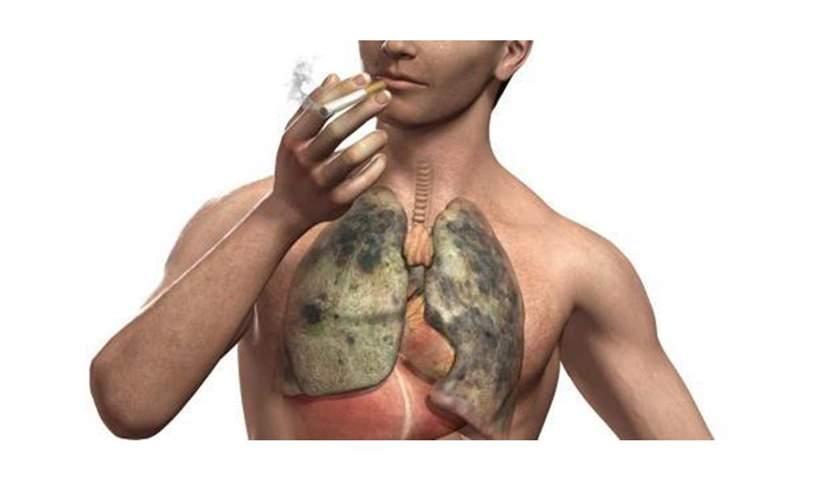 اضرار التدخين على الصحة بالفرنسية