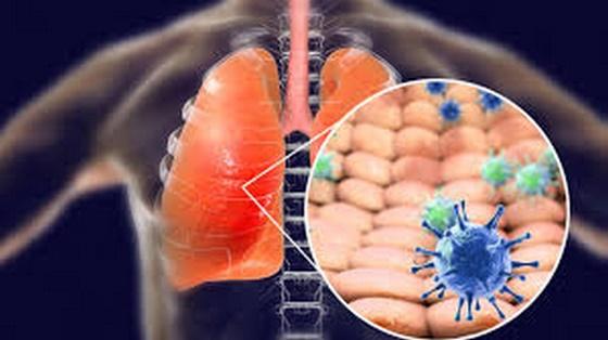 فيروس كورونا الاسباب الاعراض العلاج