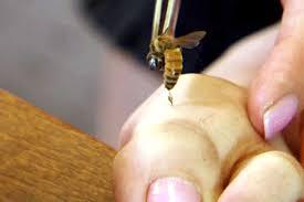 أماكن لسع النحل في الجسم